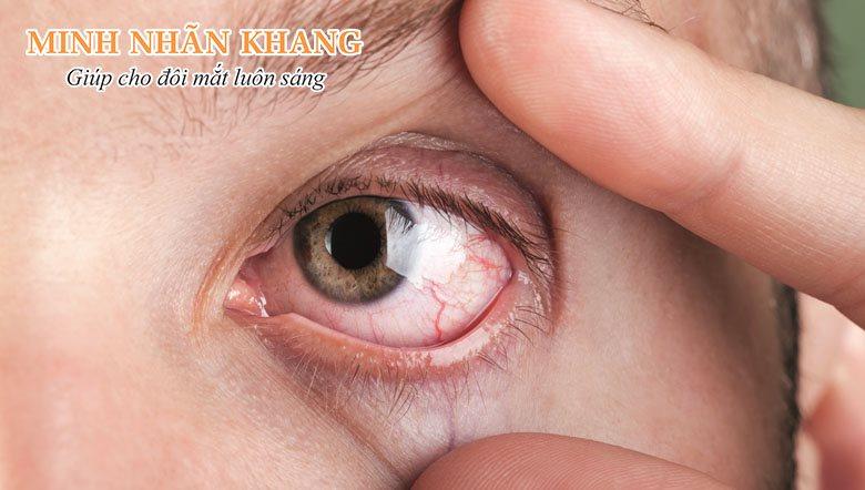 Một bên mắt bị mờ có thể do bệnh lý mạn tính